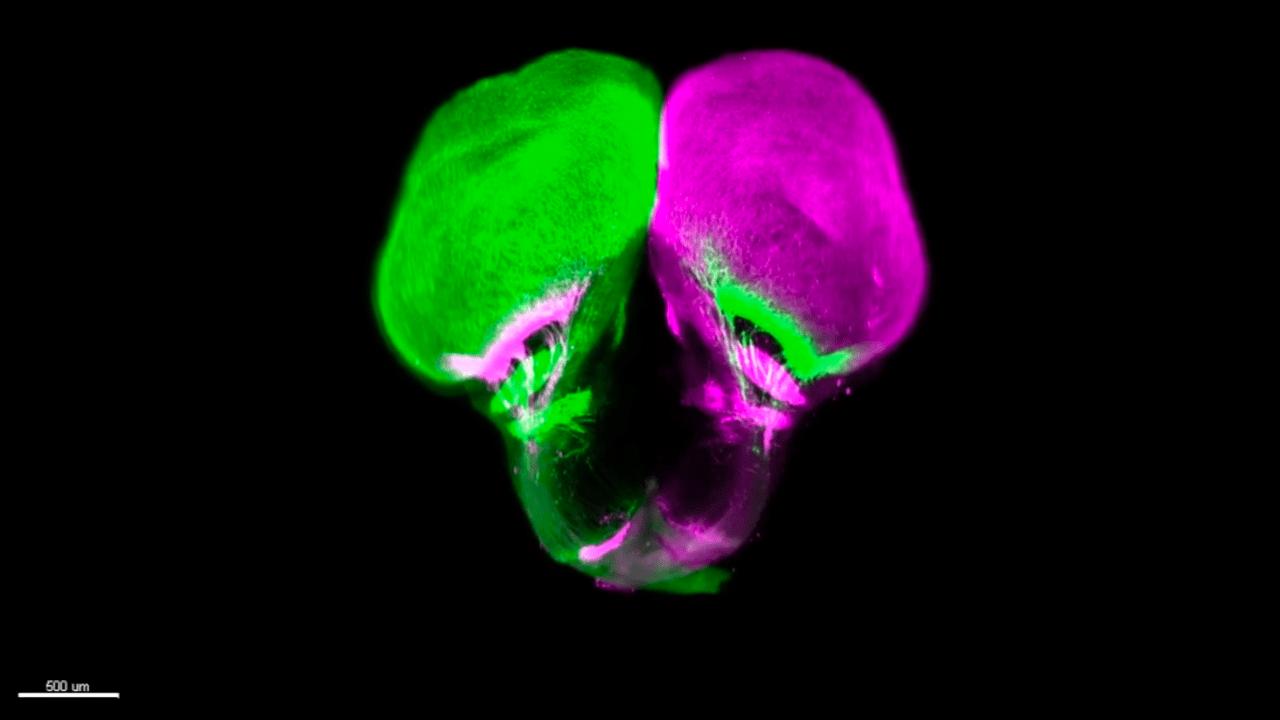 green and pink lobes of gar brain