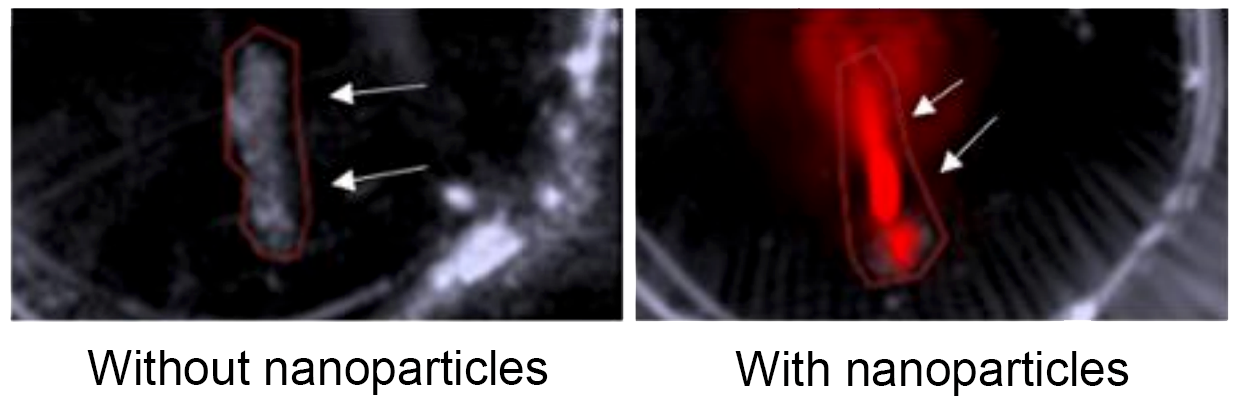 Two side by side images of arterial plaque, with the one of the right highlighted in red by the nanoparticles