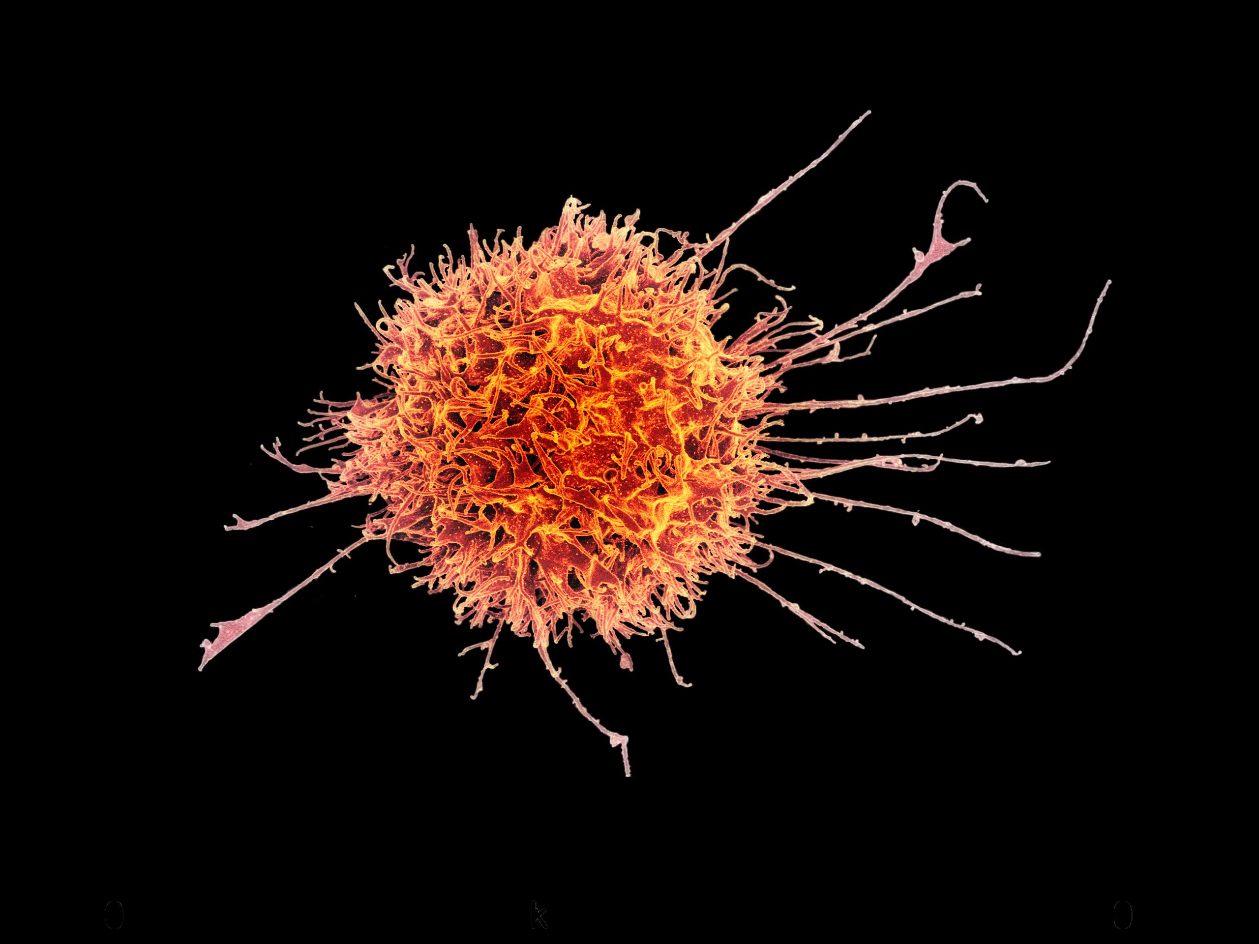 An electron micrograph has been colorized to show a spiny, tumbleweed-like natural killer cell in orange.